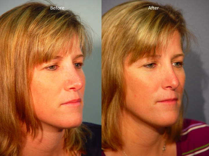 Contact - Hillstrom Facial Plastic Surgery
